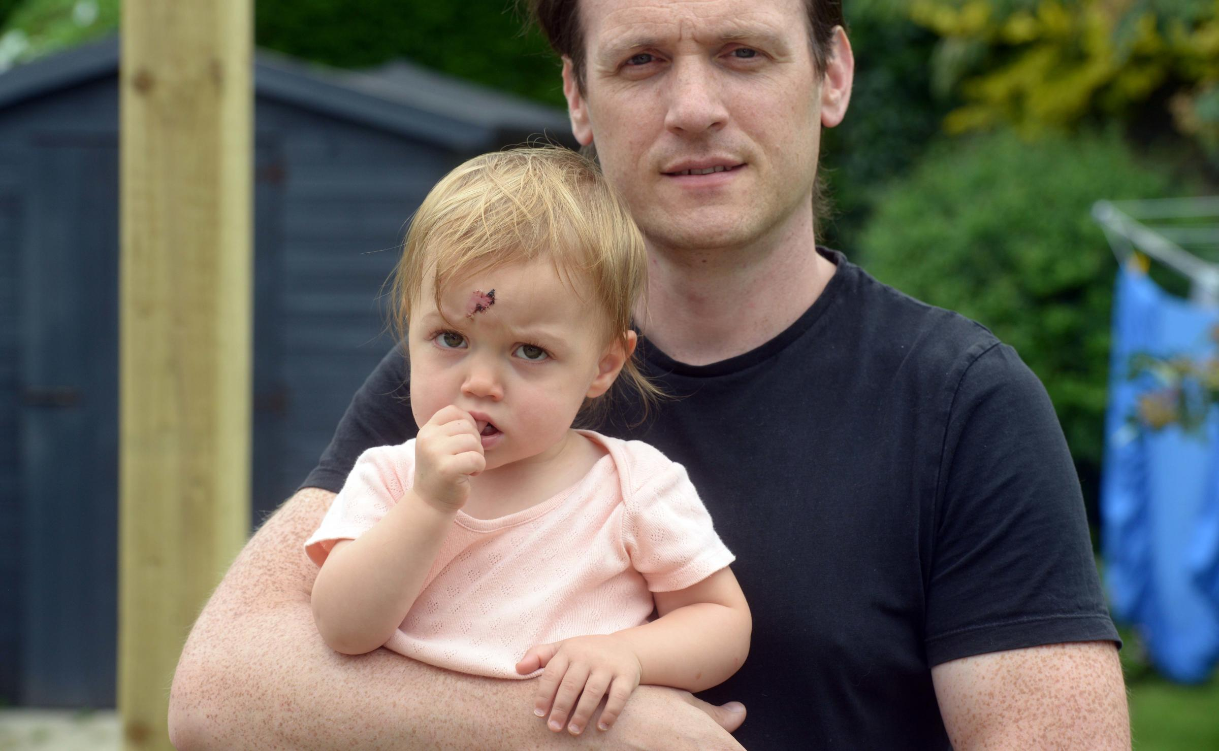 Toddler suffers horrific cut after falling head-first into wood-burning stove
