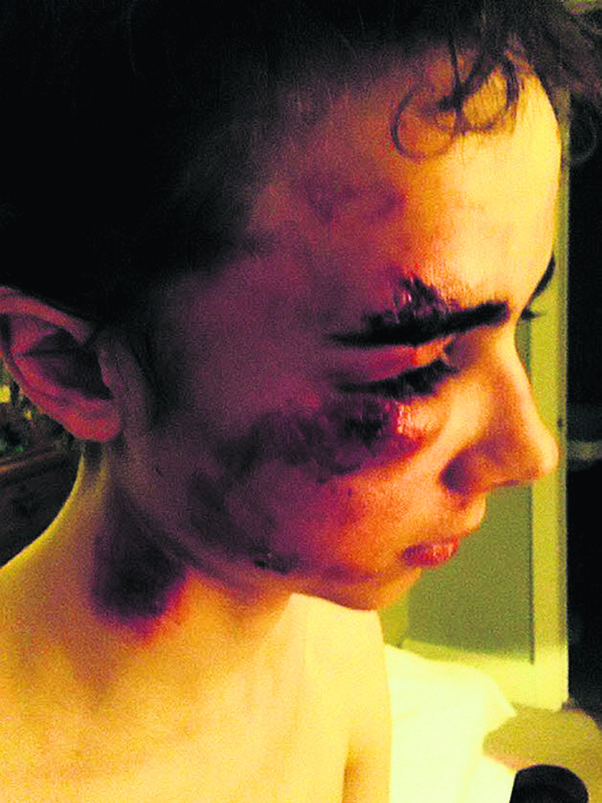Malmesbury teenager battered and bruised after pothole incident