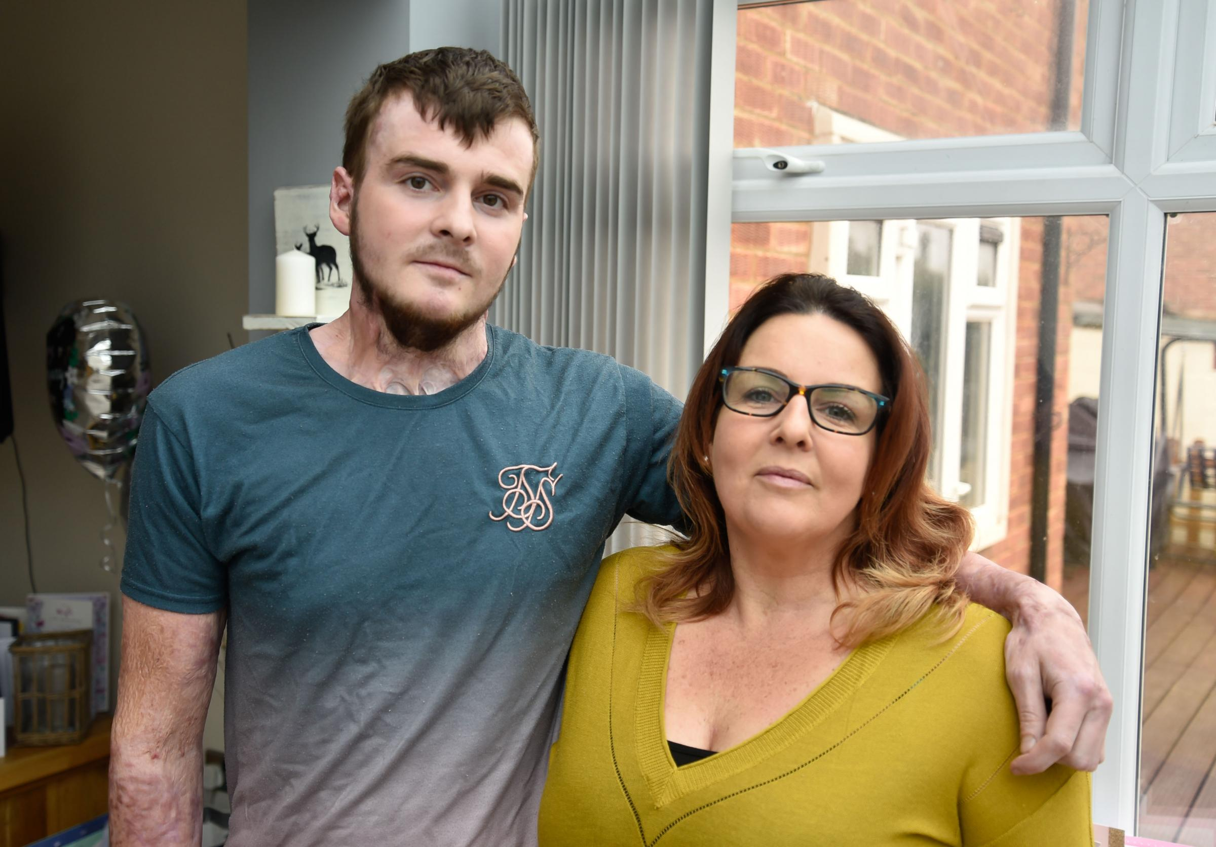 Chippenham gas explosion survivor Kyle Roe at home with mum Tracy Roe		                  	Photo by www.gphillipsphotography.com  GP1459